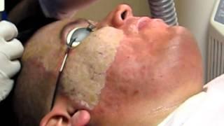 Acne Scar Removal-Deep Erbium Laser Peel-Pasadena-Burbank-Los Angeles-Glendale-Beverly Hills-Arcadia