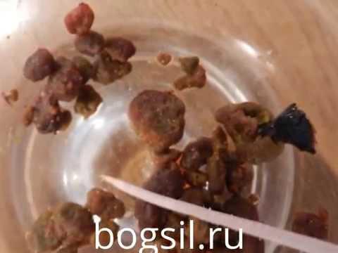 Фото рака печени - УЗИ, как выглядит