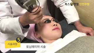 레이저토닝 미백관리 영상 톡스앤필 인천부평점