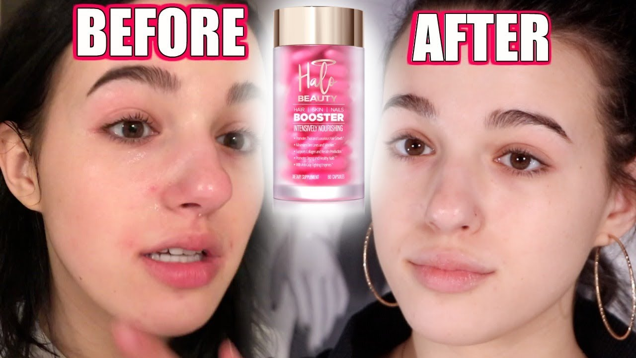 I Tried HALO BEAUTY Booster Pills For a Whole MONTH    Brutally Honest  Review!