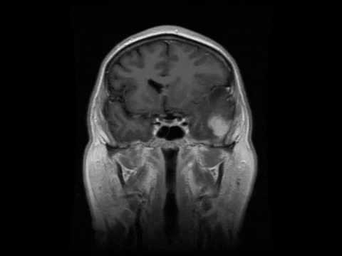 Как выглядит опухоль головного мозга на снимке МРТ