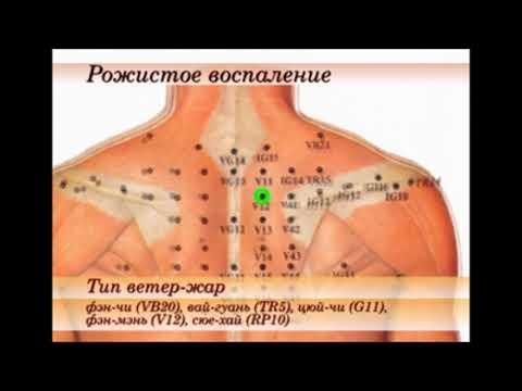 Рожистое воспаление (секрет исюэтуна)