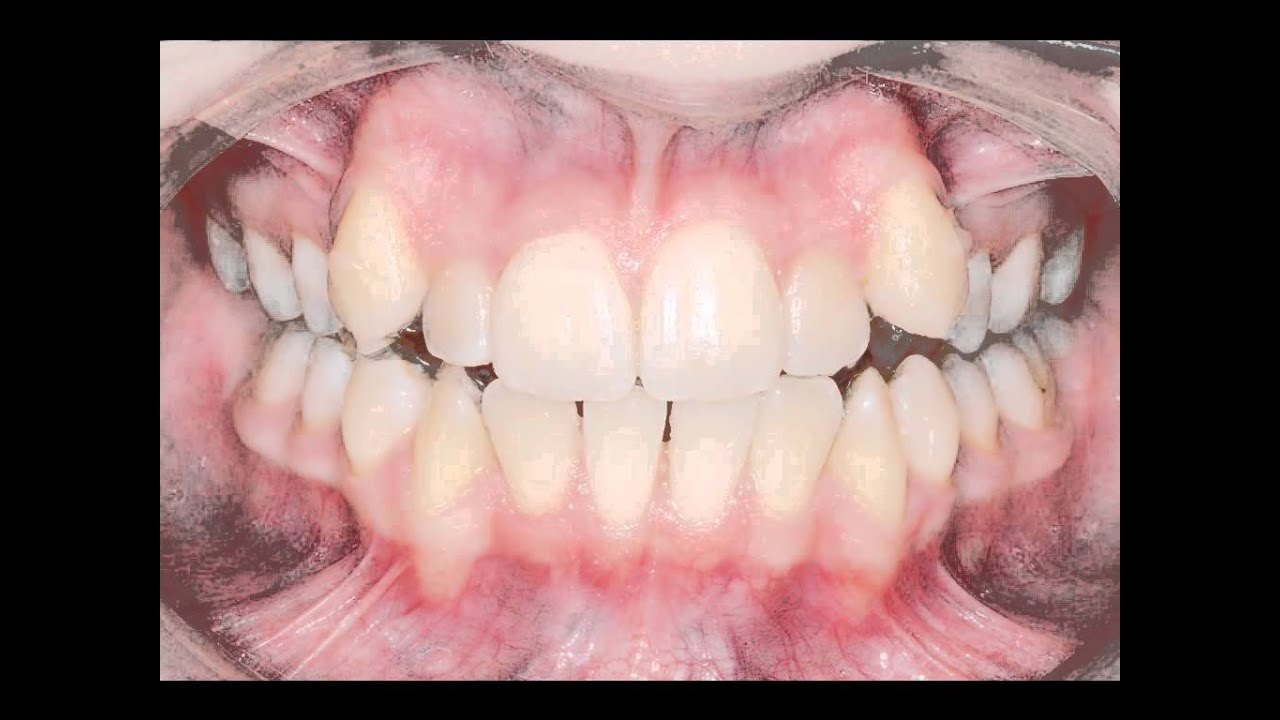 video correction of crowded teeth youtube