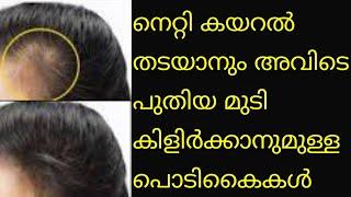 നെറ്റി കയറൽ തടയാനും പുതിയ മുടി കിളിർക്കാനും പൊടികൈകൾ promote fast hair growth in forehead malayalam