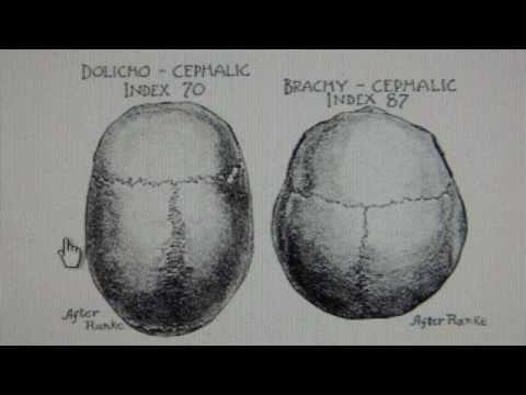 Swiss have Khazarian Brachycephalic Craniometry Cephalometry from Central Asia Mongolia