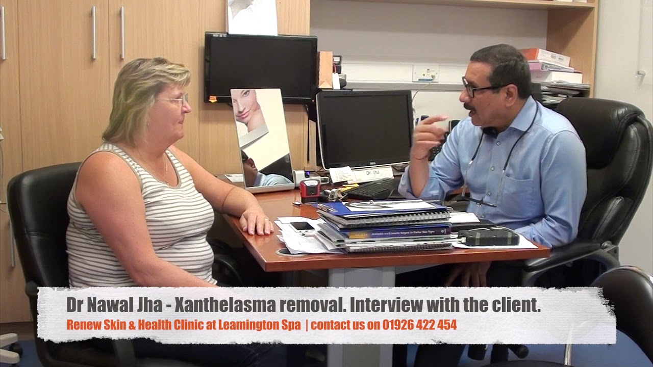 Xanthelasma removal treatment cost | Free Consultation