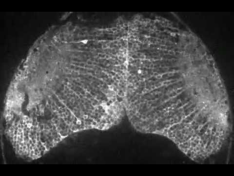 Visualizing Brain Activity Of A Fish