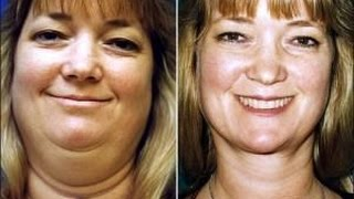 How to Lose Face Fat Fast NO EXERCISE- Learn How to Lose Face Fat Quickly with 3 Simple Steps