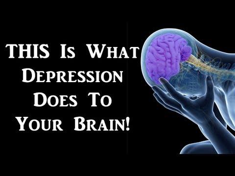 brain-changes-in-depression