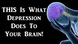 brain changes in depression