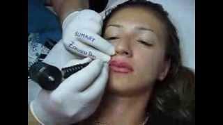 Tatuaj buze make up artist Zarescu Dan Clinica Slimart micropigmentare contur buze