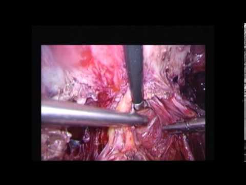 Laparoscopic management of Endometriosis with multi-organ involvment