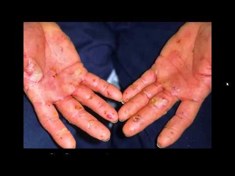Skin Problems in Commercial Fishermen
