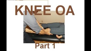 aptei knee oa mwm part 1 of 2