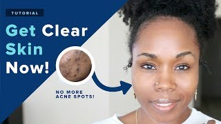 get perfect clear skin in 1 week naturally 18 diy hacks that really work contest