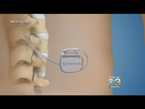 FDA Approved Device Aims To Zap Chronic Back Pain Away
