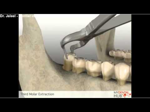 Oral Surgery - Third Molar Extraction - Dentist Ottawa