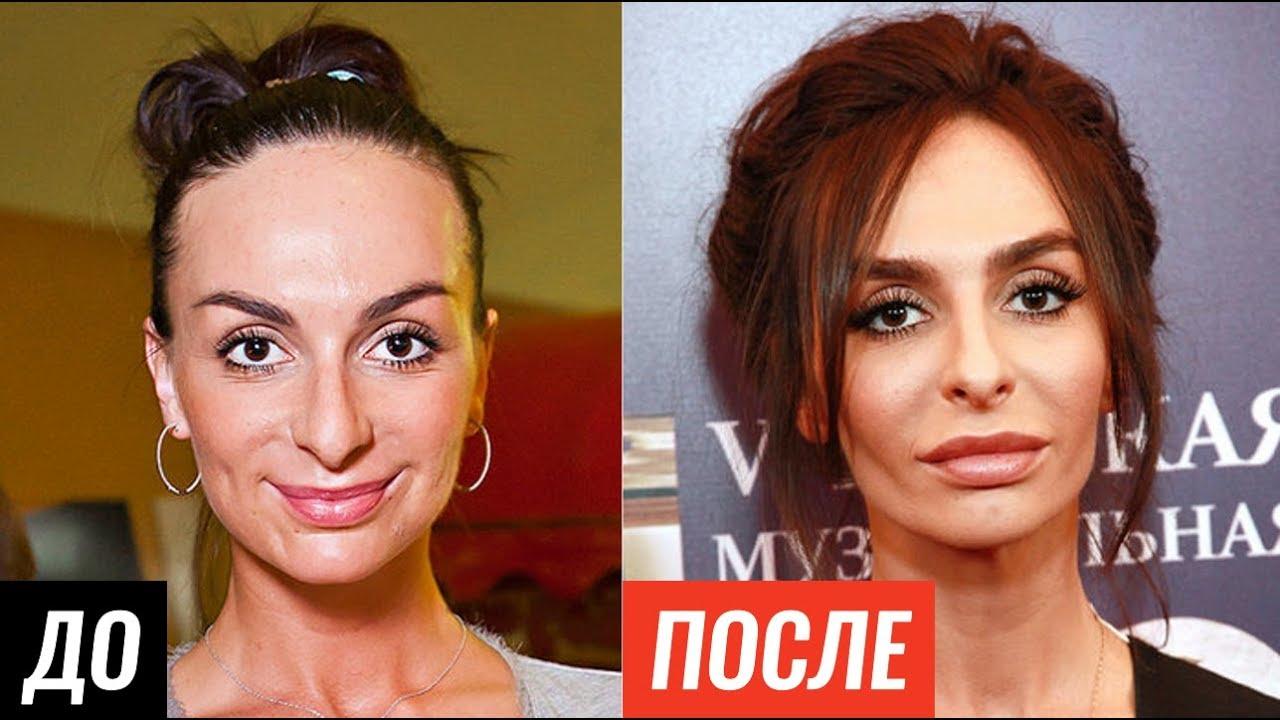 джелкинг фото до и после