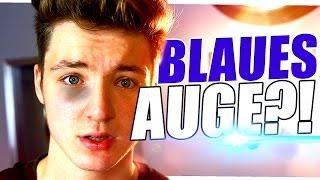 BLAUES AUGE GESCHLAGEN!?
