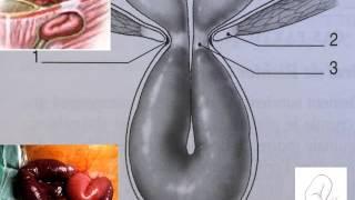 GASTRO-ENTEROLOGIE occlusions intestinales 2016