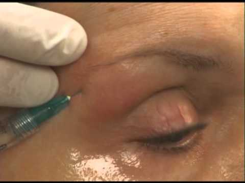 Brow Lift Using Dermal Filler Instructions by Skinspirations