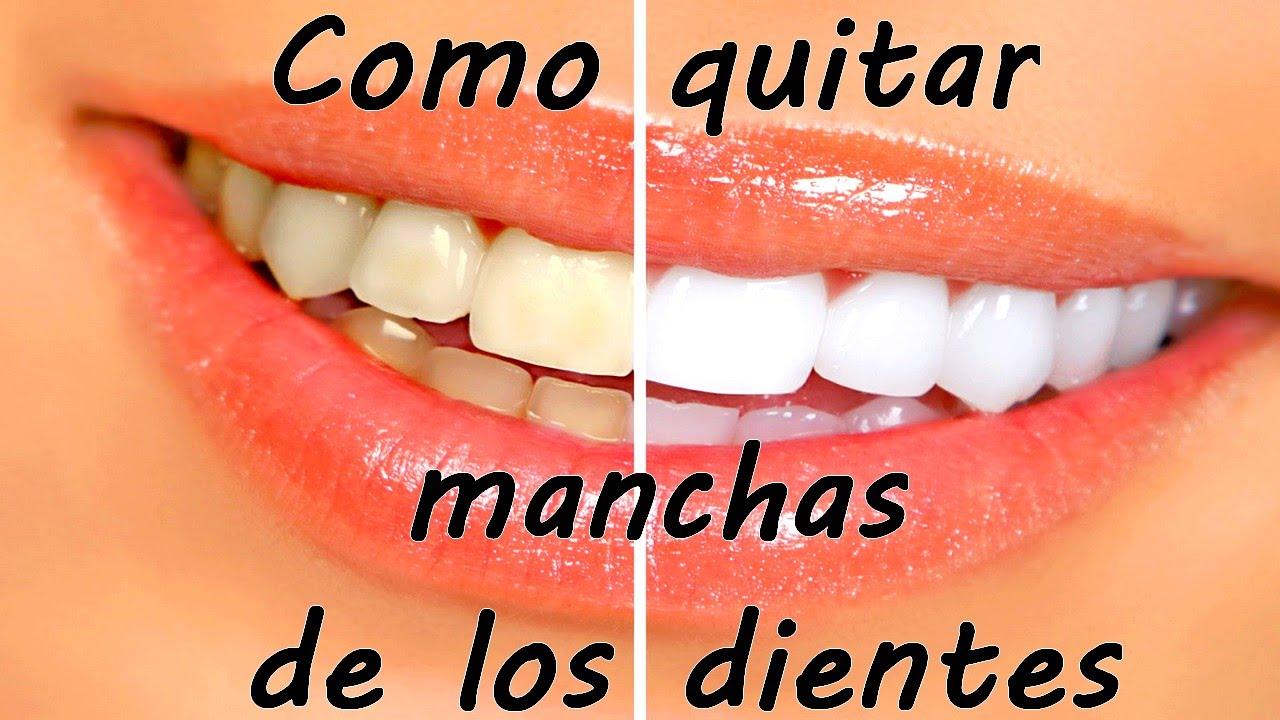Como quitar las manchas blancas de tus dientes