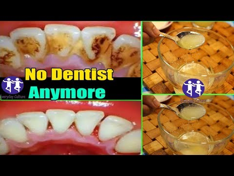 NO DENTIST ANYMORE! In 2 minutes Remove plaque from teeth