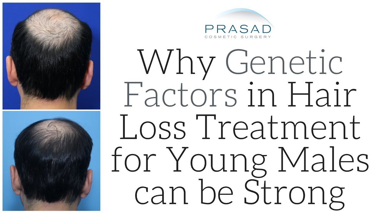 Why Strong Genetic DHT-Sensitivity in Young Men is a Major