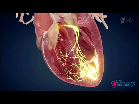 Здоровье. Аритмия. Уникальная технология лечения(13.05.2018)