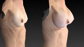 Breast Enhancement 3D Before and After-18