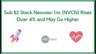 Sub $2 Stock Neovasc Inc (NVCN) Rises Over 4% and May Go Higher