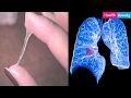 Signs of Lung Cancer   You Might Have These Symptoms