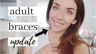 ADULT BRACES UPDATE | SIX MONTH SMILES UK CLEAR CERAMIC BRACES