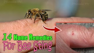 14 Home Remedies for Bee Stings, Quick Natural Home Remedy That Works!