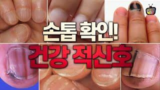 손톱에 이런 증상 있으면 건강 적신호 의심하세요.