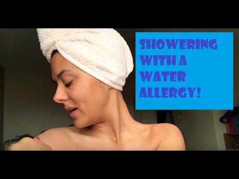 What's it like to shower with a water allergy!