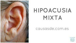 Hipoacusia mixta