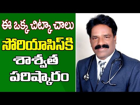 Psoriasis Treatment in Homeopathy|| Eswarappa Homeo Clinics || Doctors Club telugu