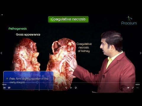 Types of Necrosis , General pathology - medical animation