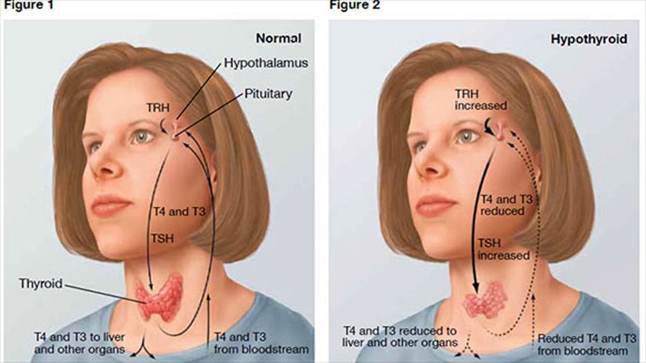 goiter symptoms goiter need of a doctor youtube