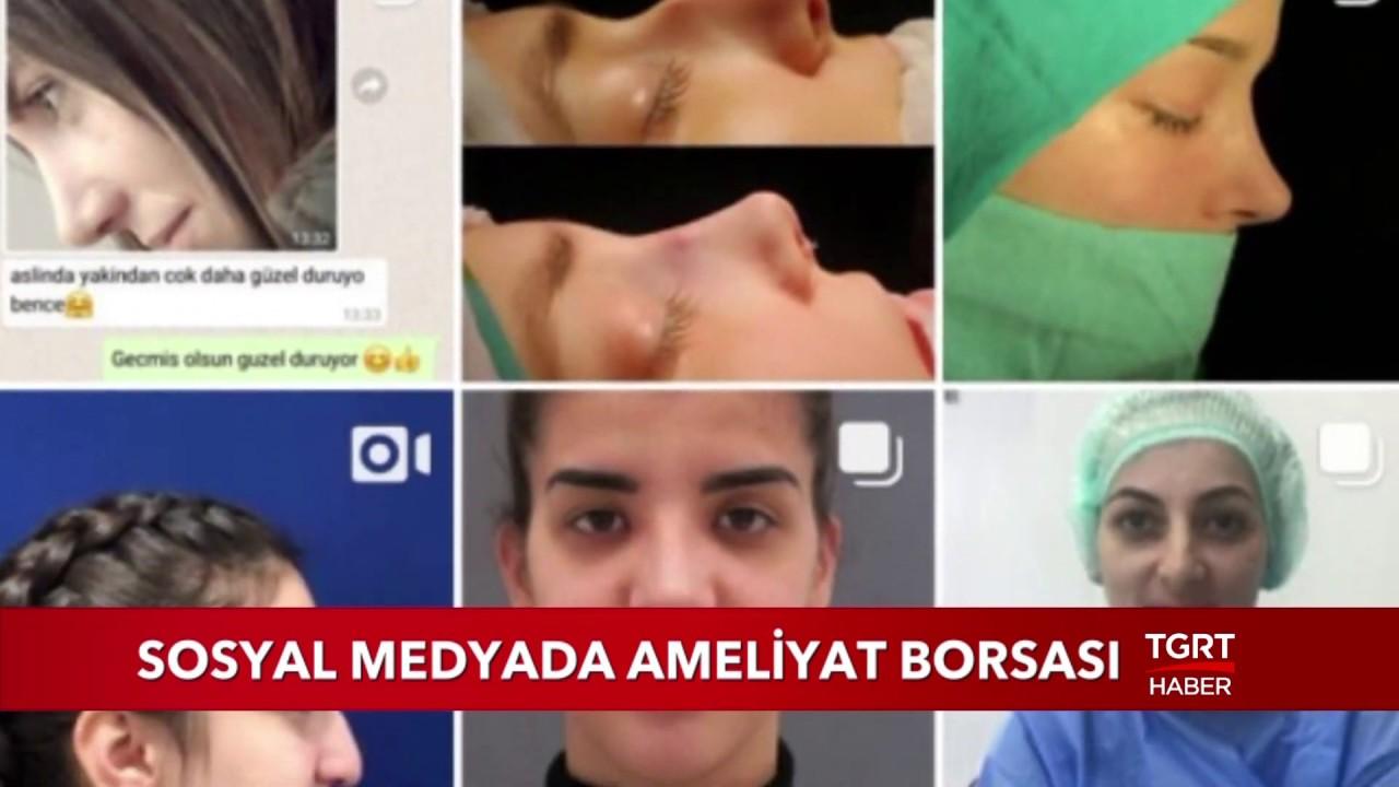 Sosyal Medyada Ameliyat Borsası