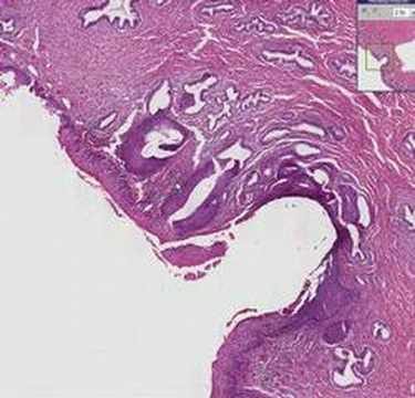 condyloma acuminata sintomas