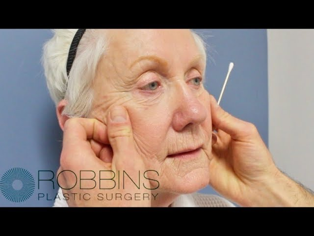 FACELIFT SURGERY- Award Winning