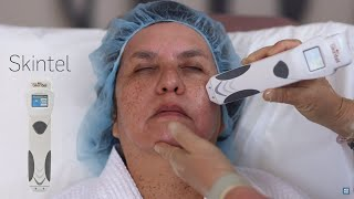 Skintel Cynosure - Mede o índice de melanina de cada paciente!