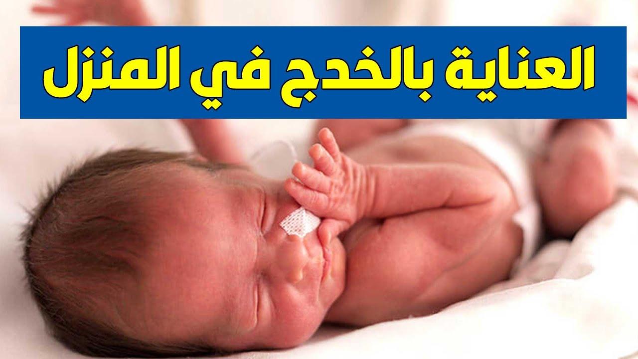 العنايه بالخدج بالمنزل - نصائح هامة للتعامل مع الطفل الخديج بعد الخروج من المستشفى