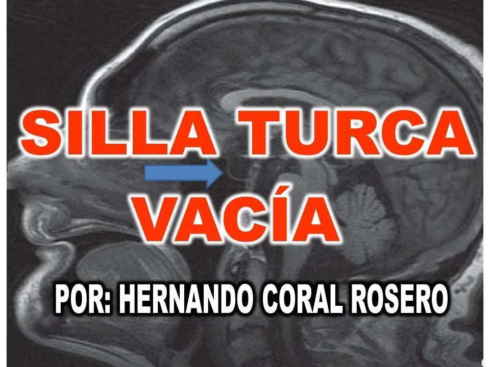 SILLA TURCA VACA  AFECCIN EN LA HIPFISIS  YouTube