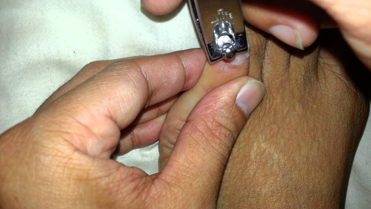 Cutting toenails - YouTube
