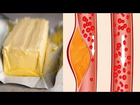 nëse-vuani-nga-kolesteroli,-hiqni-dorë-nga-këto-ushqime-sa-më-parë