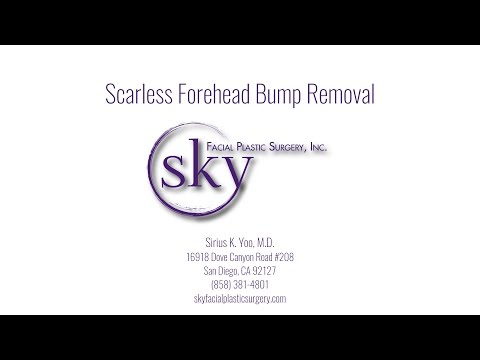 scarless-forehead-bump-removal