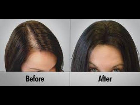 hair loss Fresno